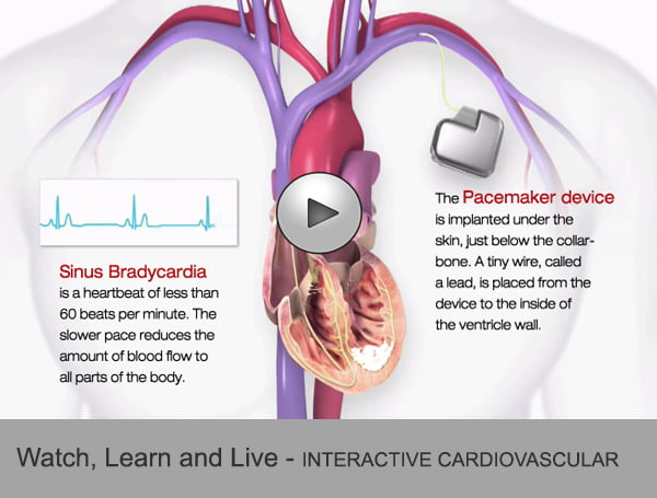 Click to see how ICD works